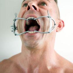 Divaricatore per bocca